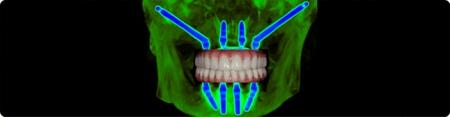 implante zigomatico