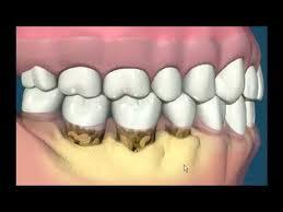El sarro dental
