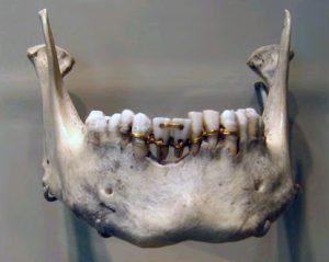 El primer puente dental