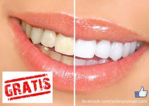 Blanqueamiento dental gratis