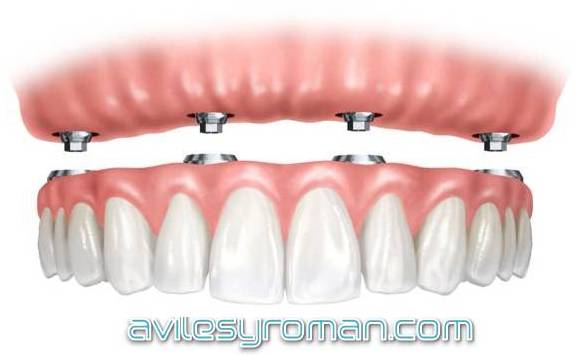 Protesis Dental Aviles y Roman