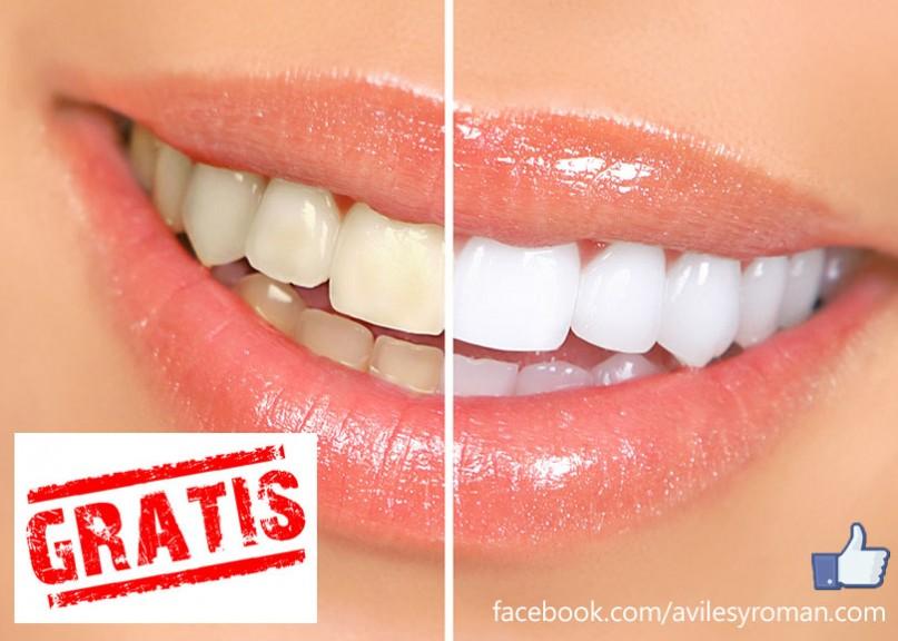 Blanqueamiento Dental Gratuito
