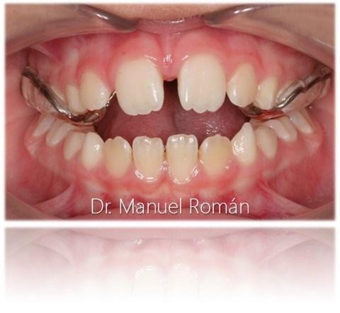 Disyuntor de ortodoncia