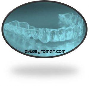 ferula_dentistas_malaga