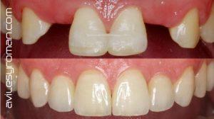 Importancia de la protesis dental sobre implantes