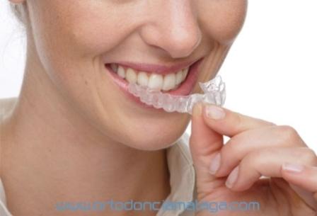 ortodonciaclinicamalaga