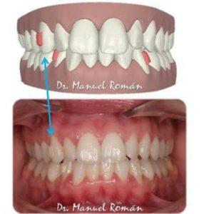 ataches-dentistas-malaga