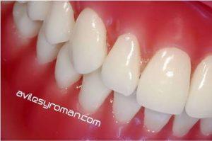encias-dentistas-malaga