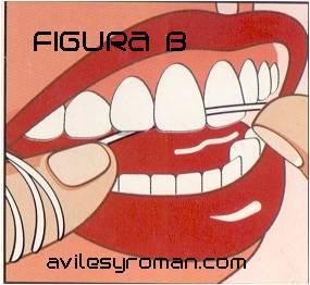 figura_b_clinica_malaga
