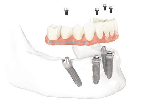 protesis-allonfour-dentistas-malaga