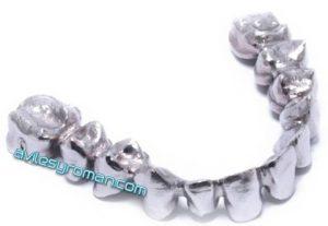 protesis-ceramica-dentistas-malaga