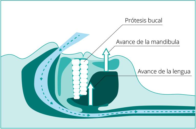 Diagrama-Apnea