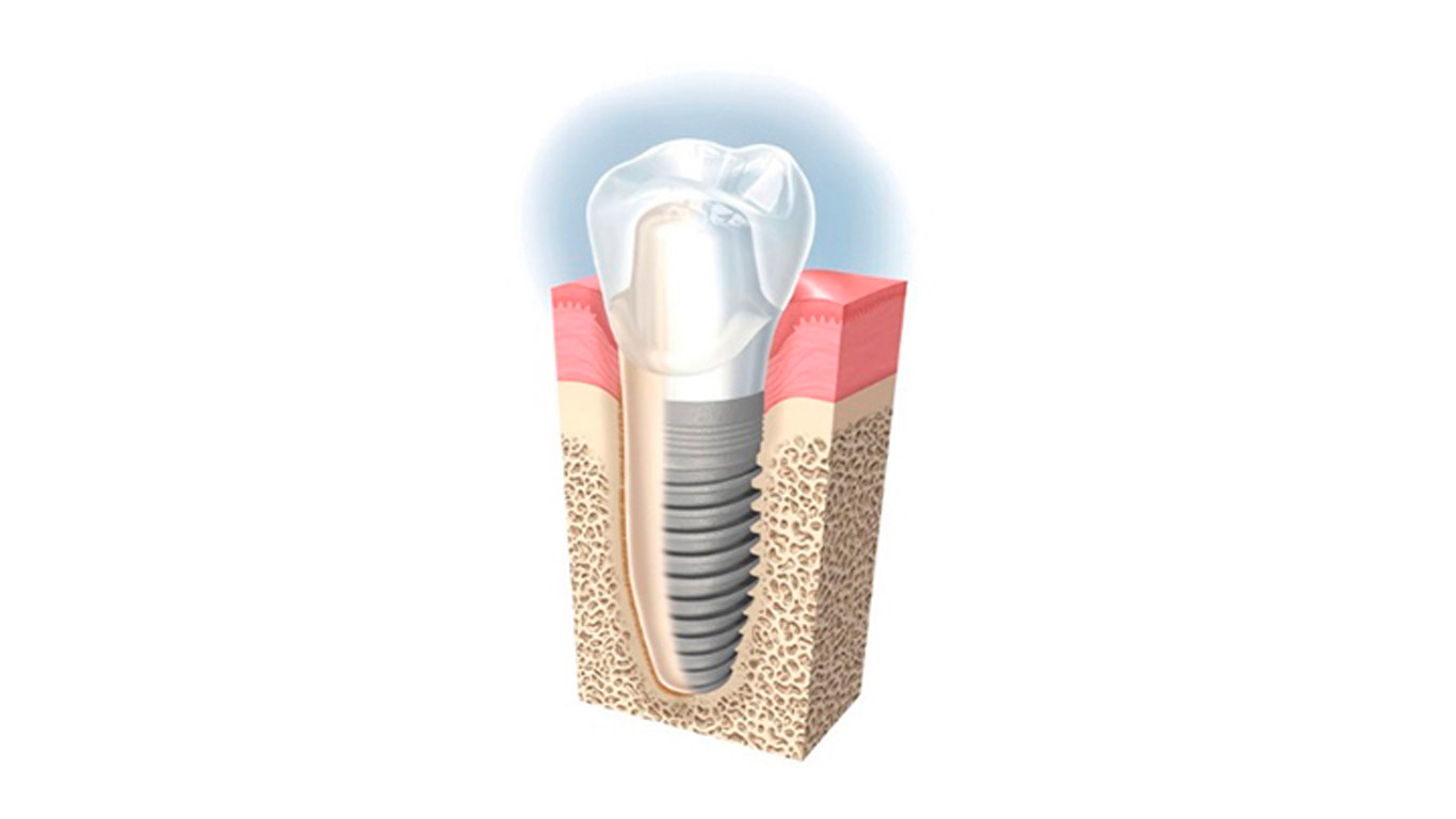 Implante-unico