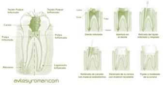 endodoncia-preguntas-frecuentes