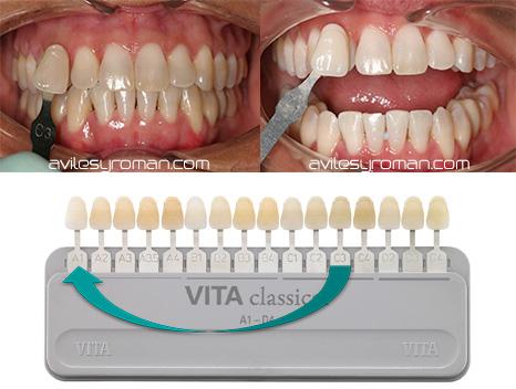 Blanqueamiento dental en malaga