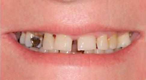 implante-gen1