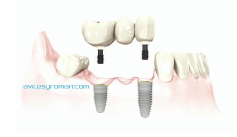 implantes dentales en malaga