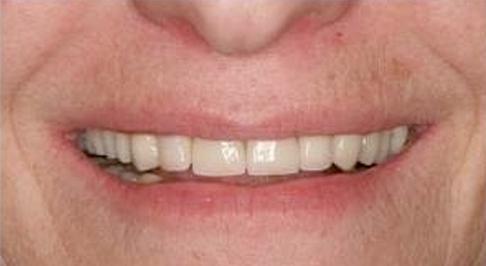 ortodoncia-implantes-02