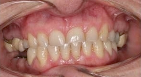 ortodoncia-implantes-03