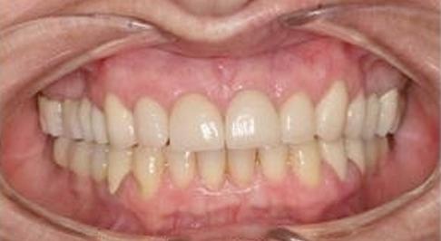 ortodoncia-implantes-04