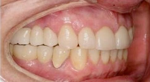 ortodoncia-implantes-06