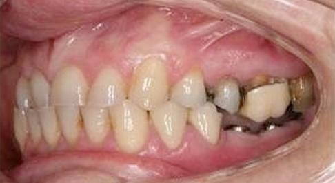 ortodoncia-implantes-07