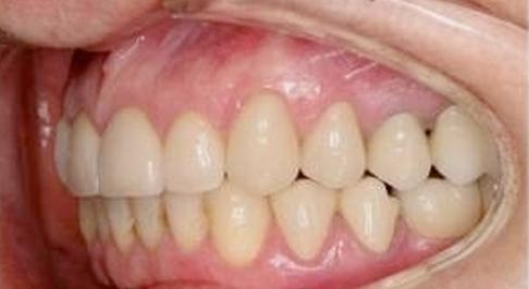 ortodoncia-implantes-08