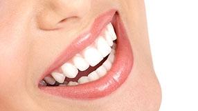 10 soluciones para sonreir