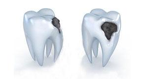 Caries de dientes Malaga