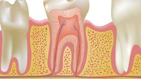 Endodoncia Malaga